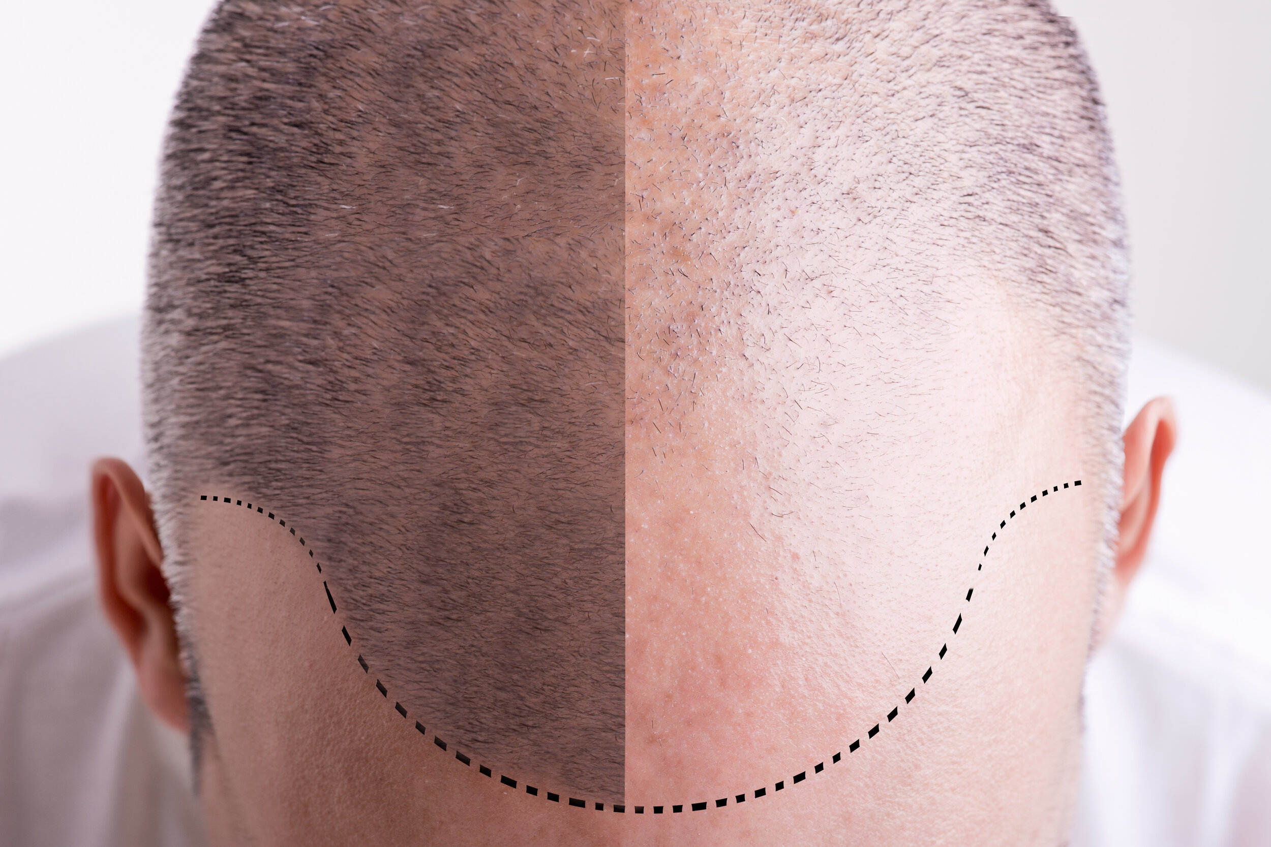 Mistakes You Should Avoid in Scalp Micropigmentation